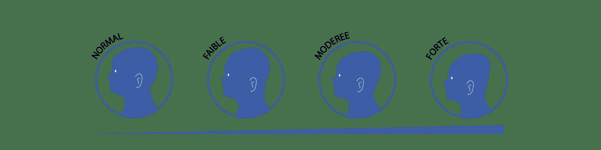 forme de têtes avec une craniocéphalie